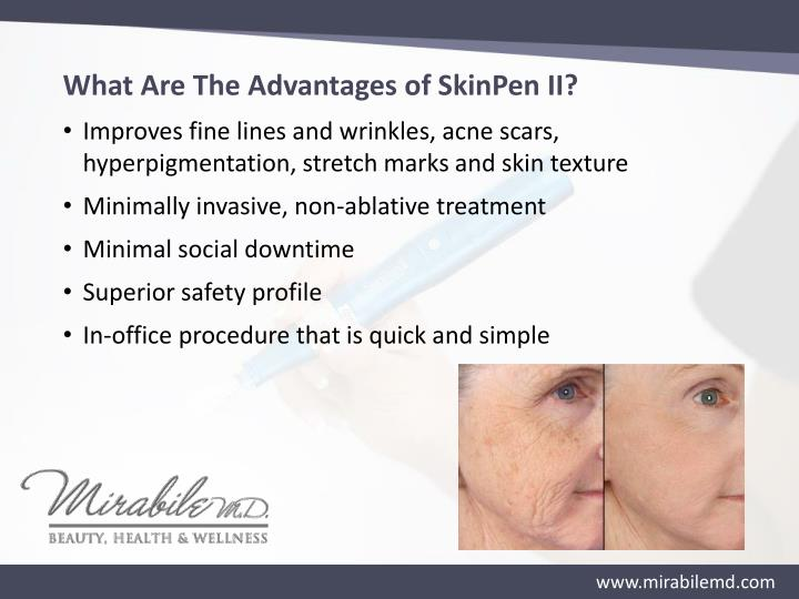 What Are The Advantages of SkinPen II?