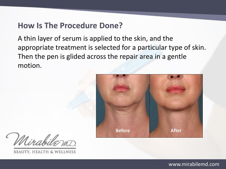 How Is The Procedure Done?