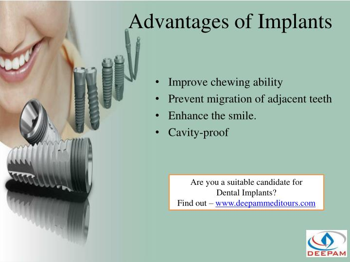Advantages of Implants