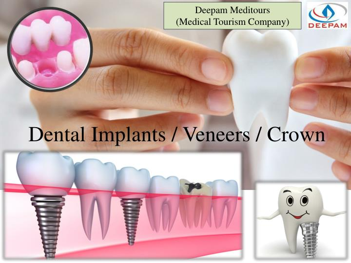 Dental implants veneers crown