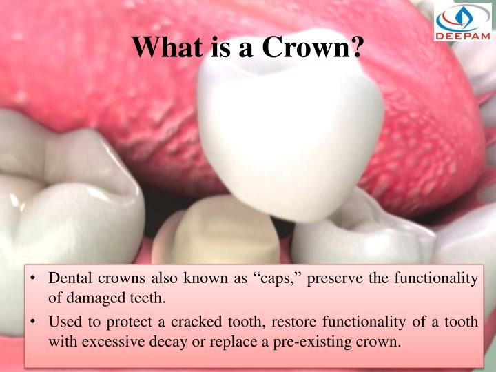 What is a Crown?