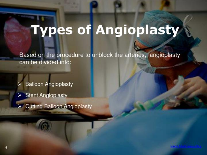 Types of Angioplasty