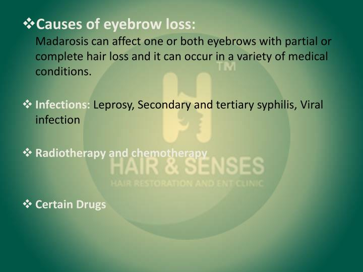 Causes of eyebrow loss: