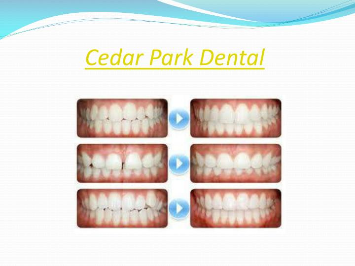 Cedar Park Dental