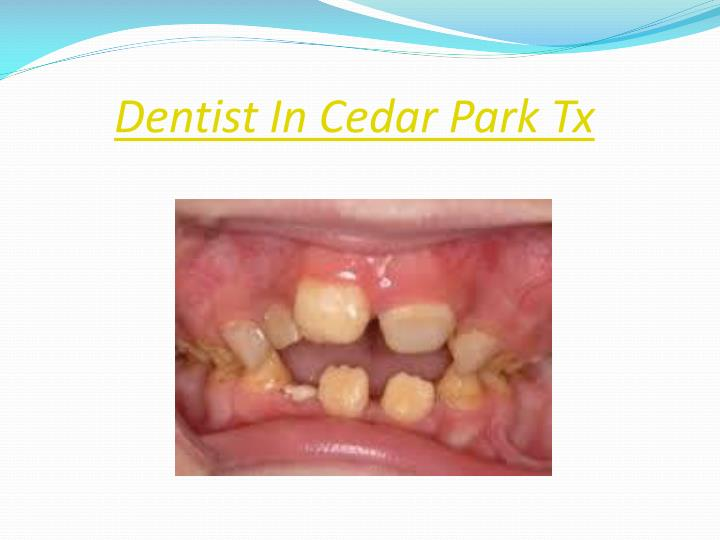Dentist In Cedar Park