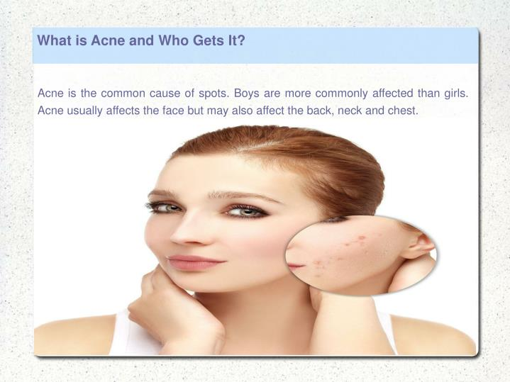 What is Acne and Who Gets It?