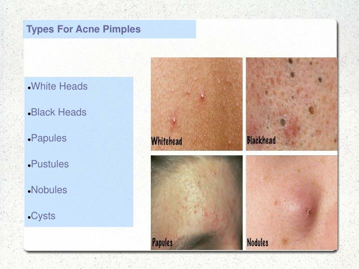 Types For Acne Pimples