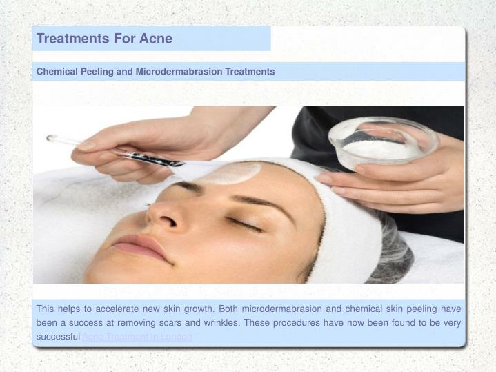 Treatments For Acne