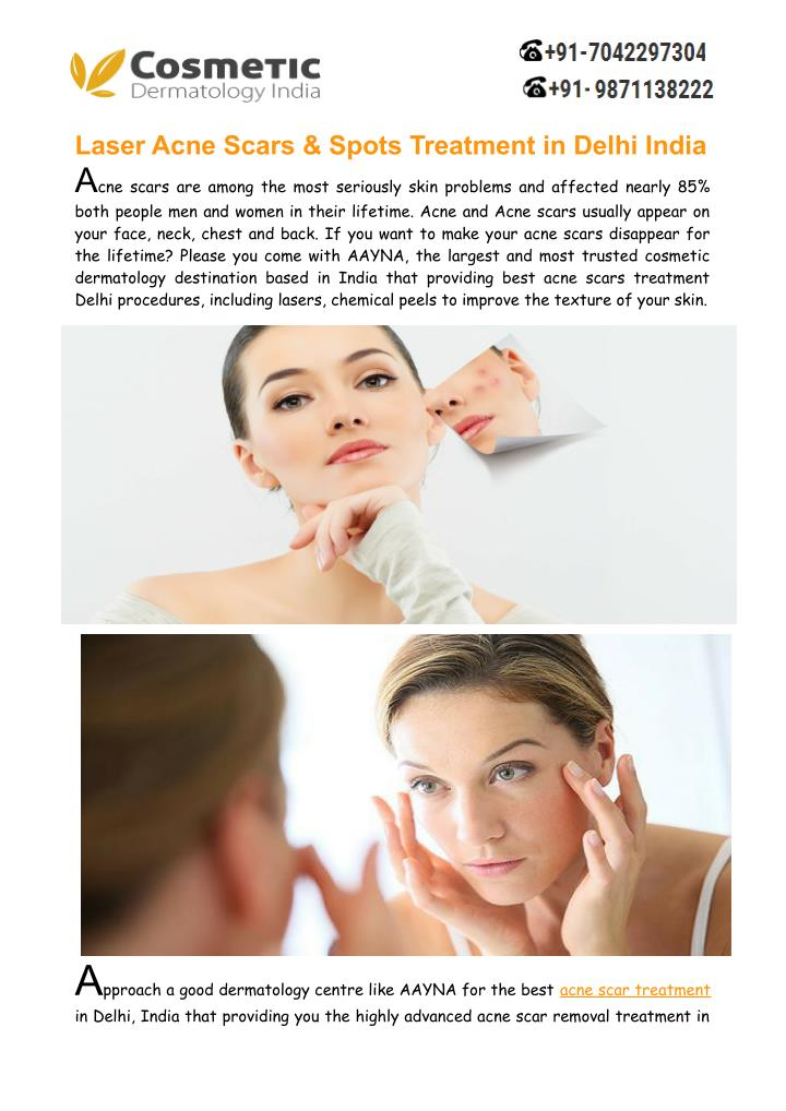 Laser Acne Scars & Spots Treatment in Delhi India