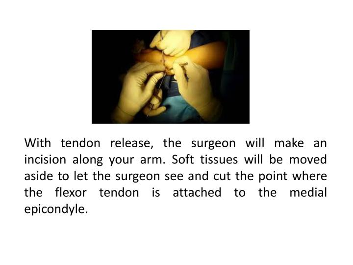 With tendon release, the surgeon will make an