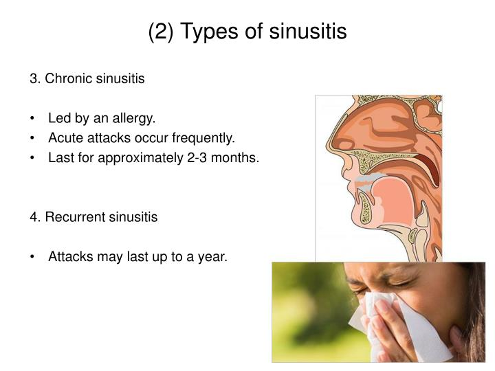(2) Types of sinusitis