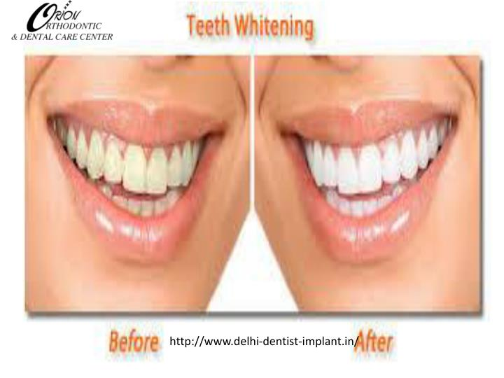 http://www.delhi-dentist-implant.in/