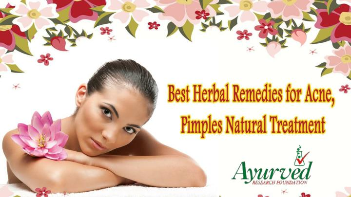 Best herbal remedies for acne pimples natural treatment