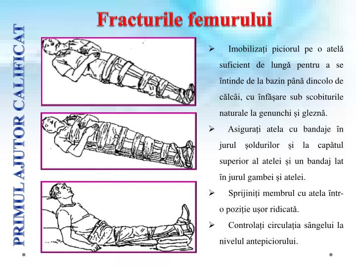 Fracturile femurului