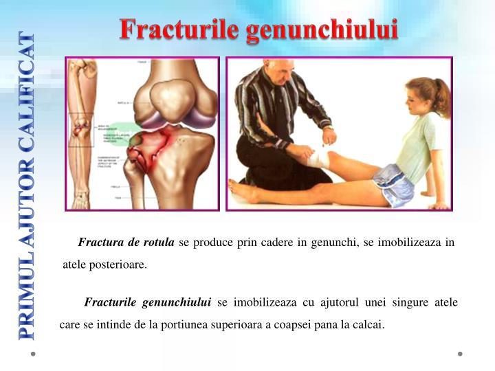 Fracturile genunchiului