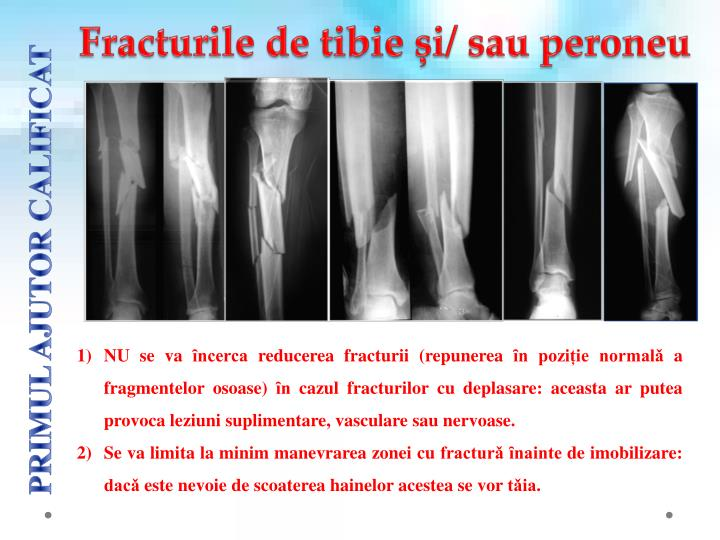 Fracturile