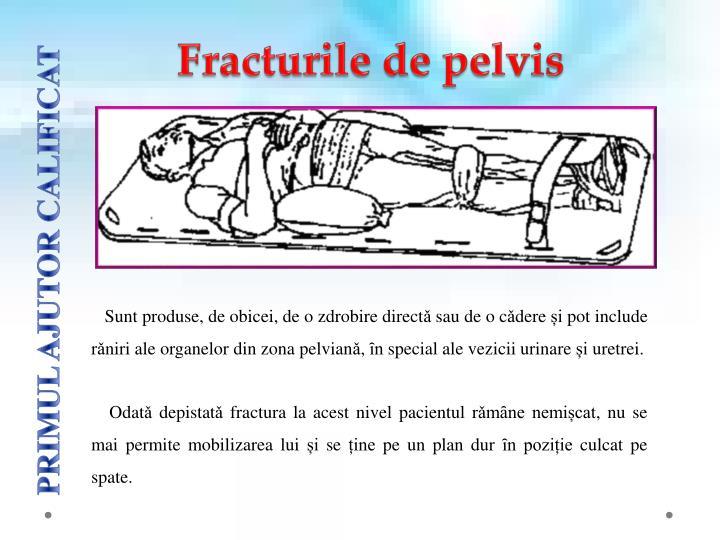 Fracturile de pelvis