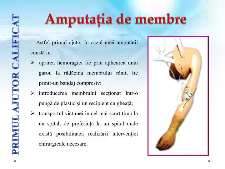 Amputația