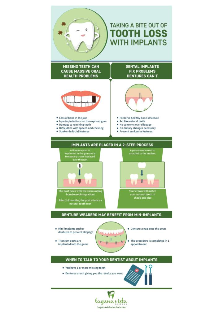 Dental implants the smart solution for tooth loss