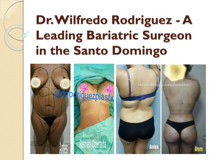 Dr wilfredo rodriguez a leading bariatric surgeon in the santo domingo