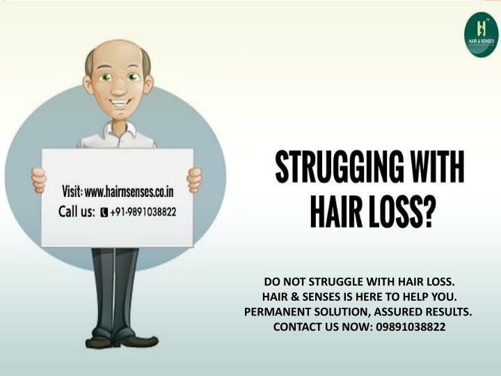 DO NOT STRUGGLE WITH HAIR LOSS.
