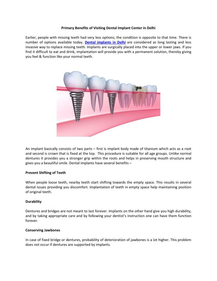 Primary Benefits of Visiting Dental Implant Center in Delhi