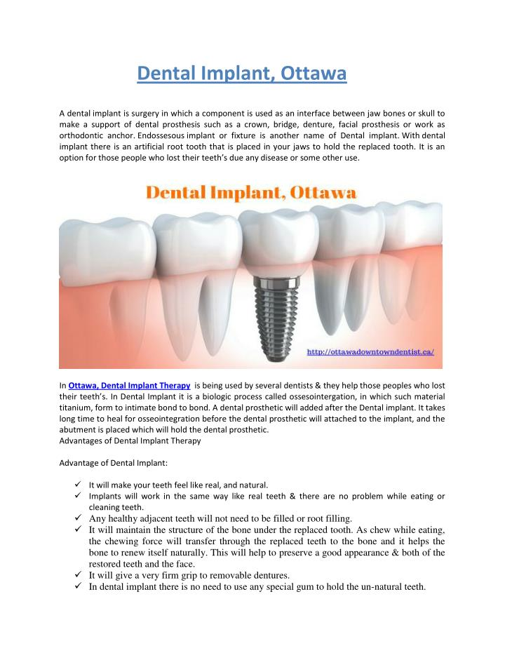 Dental Implant, Ottawa