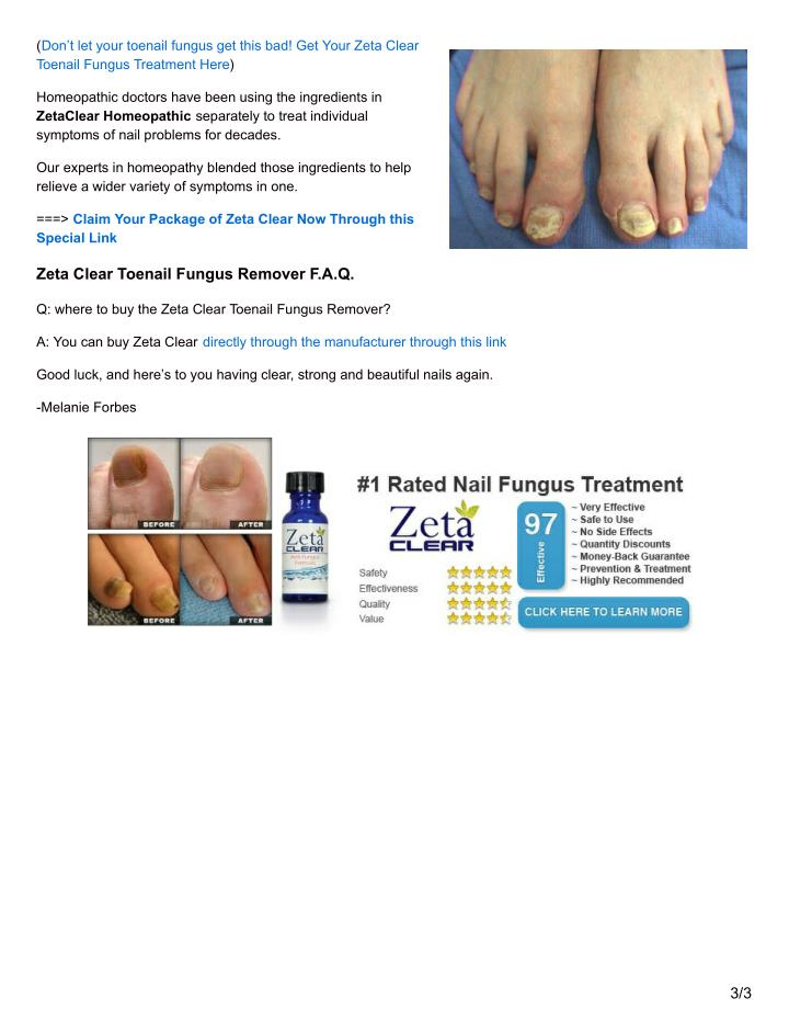 (Don't let your toenail fungus get this bad! Get Your Zeta Clear