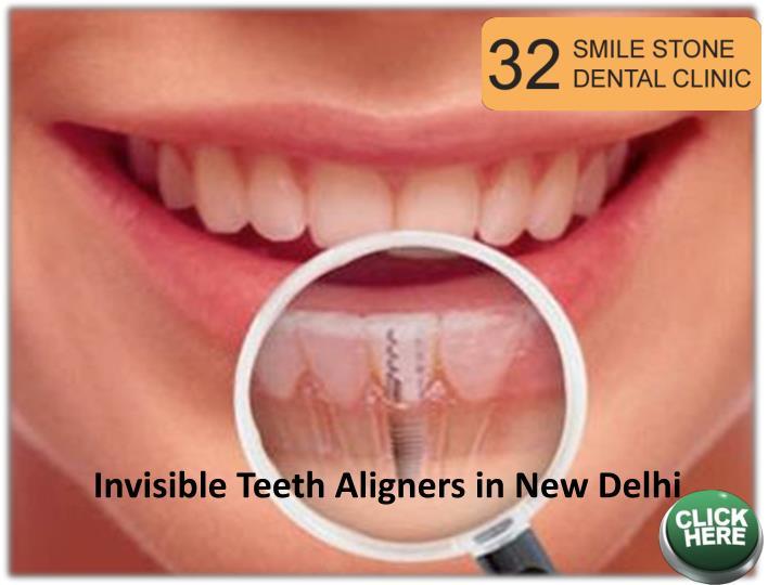 Invisible Teeth Aligners in New Delhi