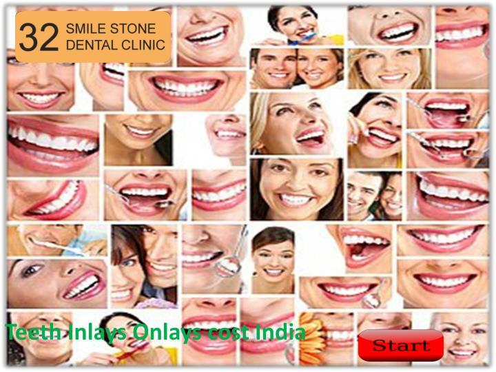 Teeth Inlays