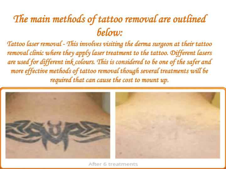 The main methods of tattoo removal are outlined below:
