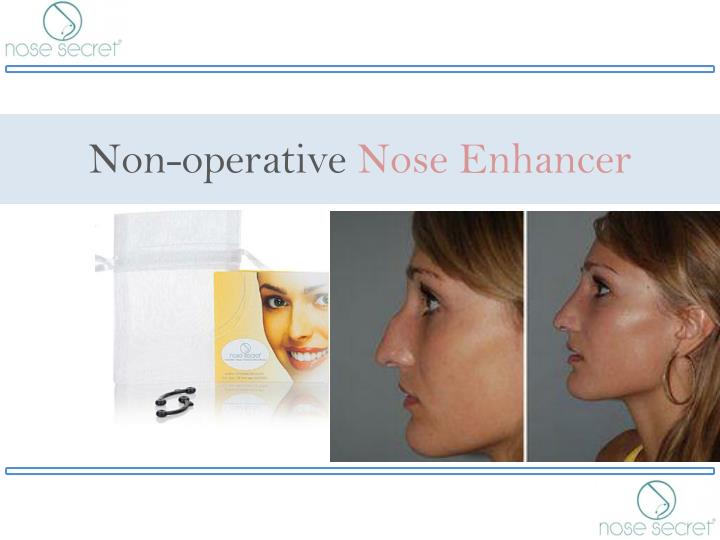 Non operative nose enhancer