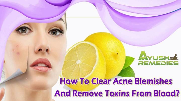 How to clear acne blemishes and remove toxins from blood