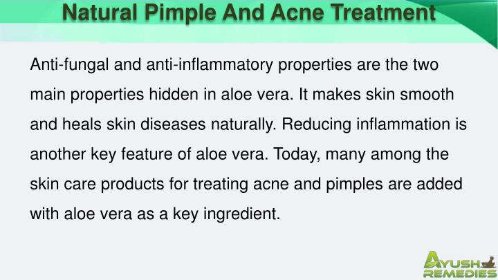 Natural Pimple And Acne Treatment