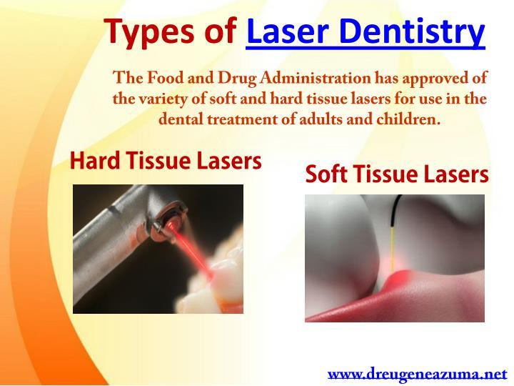 Types of Laser Dentistry