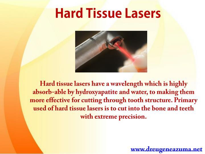 Hard Tissue Lasers