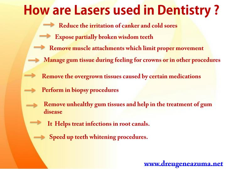 How are Lasers used in Dentistry ?