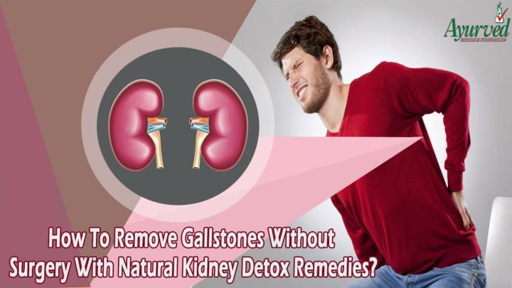How to remove gallstones without surgery with natural kidney detox remedies