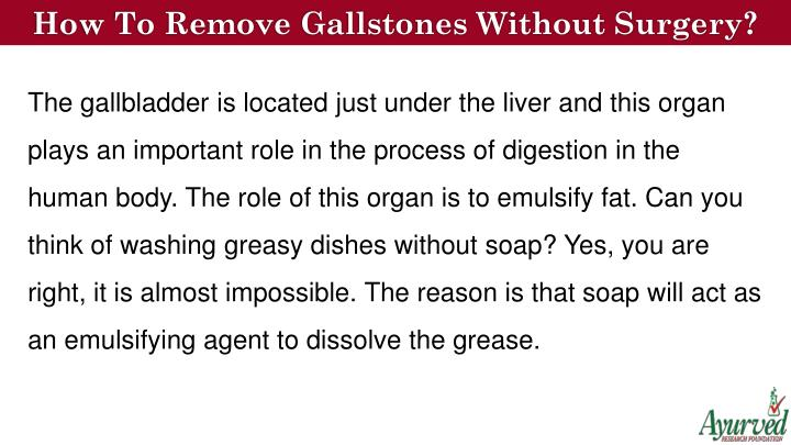 How To Remove Gallstones Without Surgery?