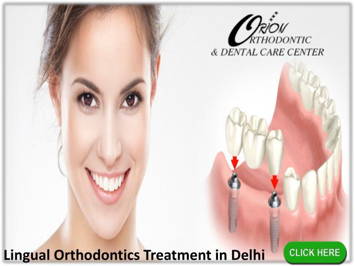 Lingual Orthodontics Treatment in Delhi