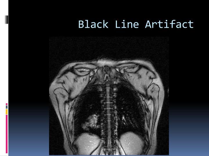 Black Line Artifact