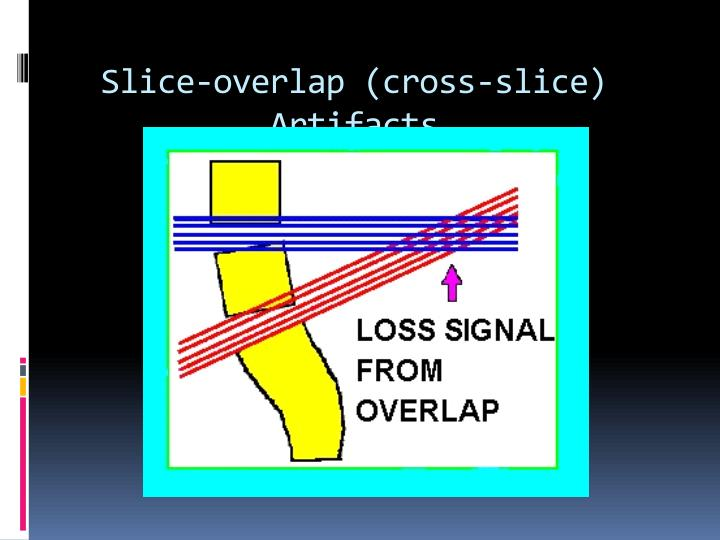 Slice-overlap (cross-slice) Artifacts