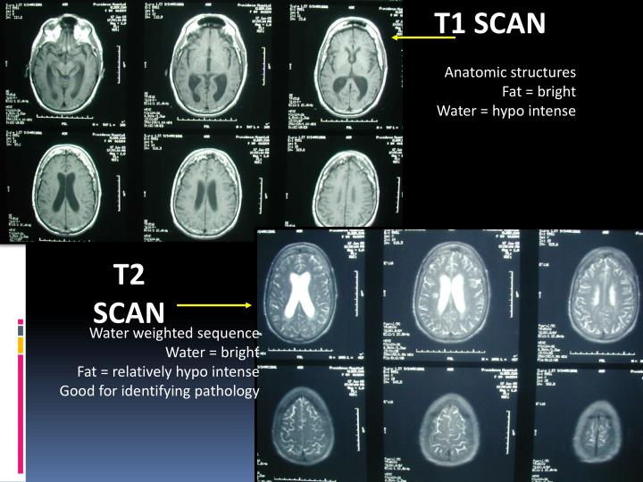 T1 SCAN