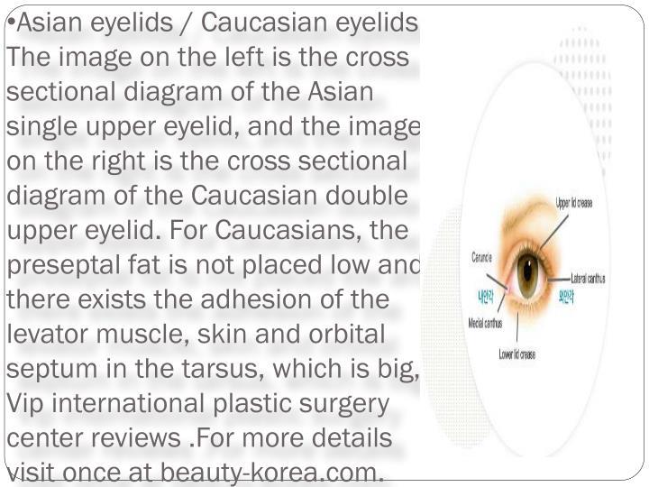 Asian eyelids / Caucasian eyelids