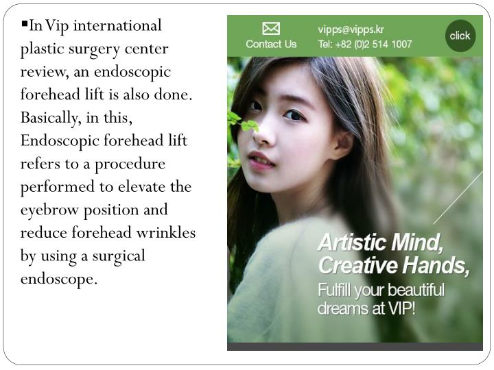 In Vip international plastic surgery center review, an endoscopic forehead lift is also