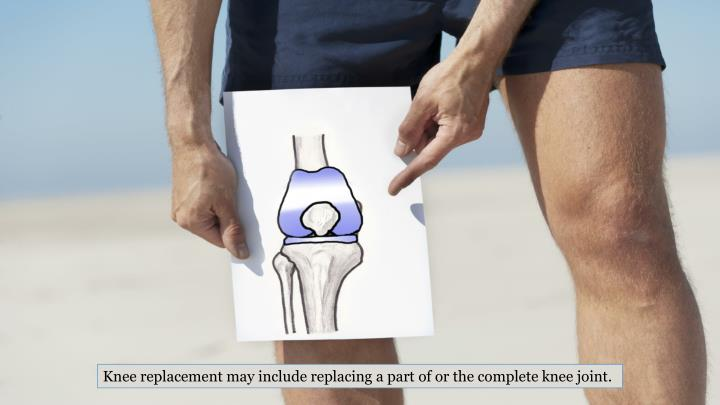 Knee replacement may include replacing a part of or the complete knee joint