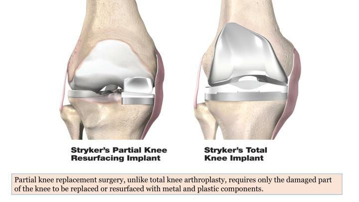 Partial knee replacement surgery, unlike total knee