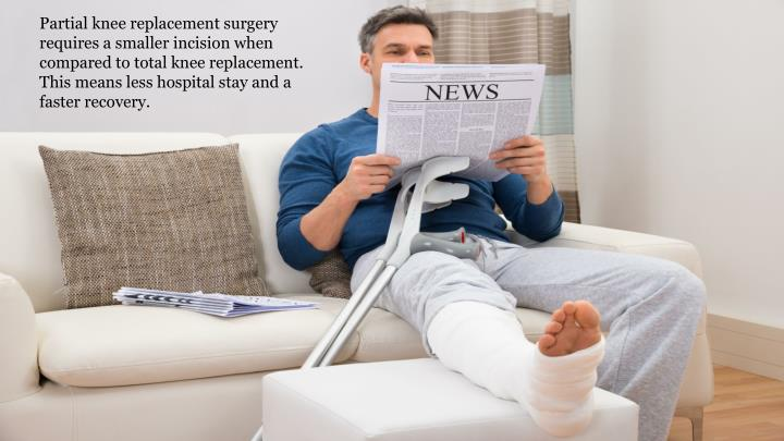 Partial knee replacement surgery requires a smaller incision when compared to total knee replacement. This means less hospital stay and a faster recovery