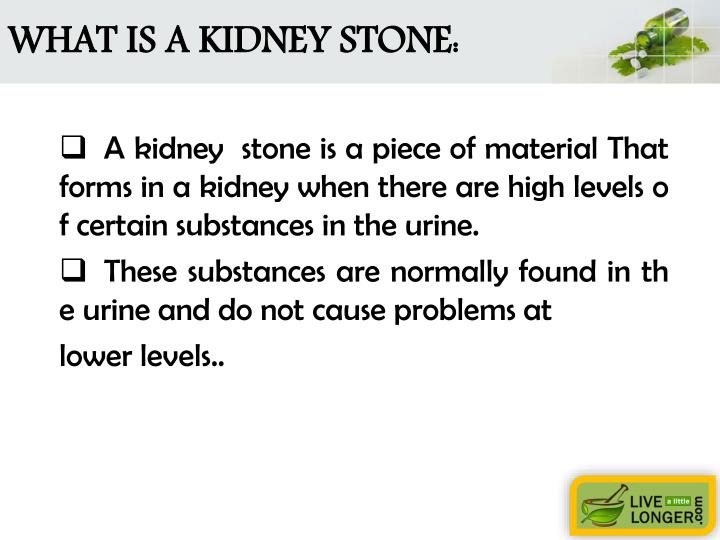 What is a kidney stone