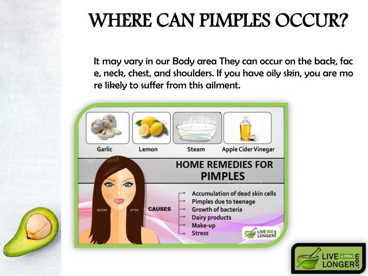 WHERE CAN PIMPLES OCCUR?